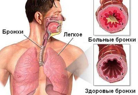 Здоровые бронхи и воспаленные при поражении астматическим бронхитом