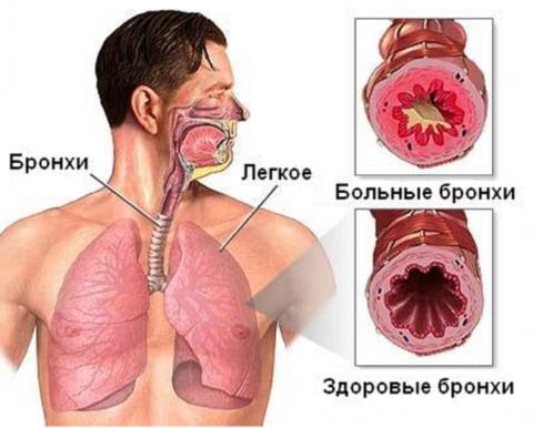 Здоровые и больные дыхательные пути