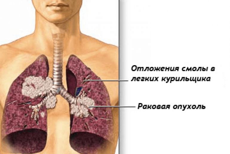 Рак бронхов