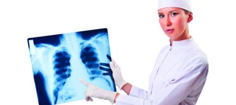 Основные причины развития плоскоклеточной онкологии легкого.