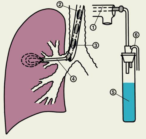 Схема проведения бронхоальвеолярного лаважа
