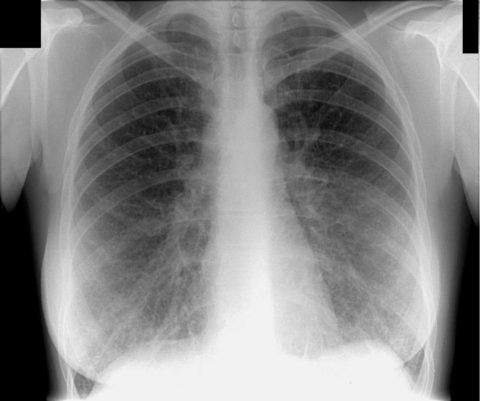 Снимок при хронической форме болезни в период обострения