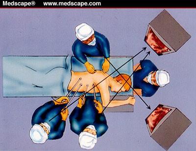 Торакоскопия.
