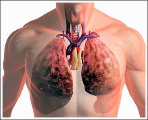 Туберкулез как предрасполагающий фактор.