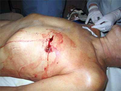 Проникающее ранение в грудную клетку (фото)