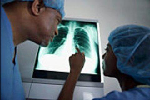 С какими симптомами сталкивается человек при раке легких.
