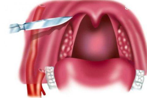 Часто используется оперативный метод лечения.