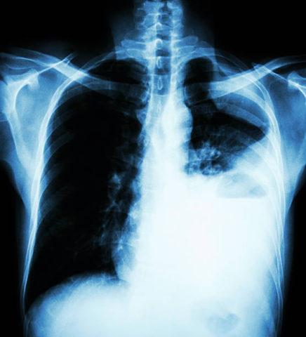 Как выглядит рак легких на снимке рентгенограммы.