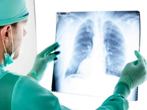 Какие симптомы характерны для рака легких.