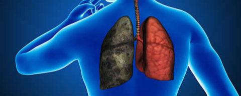 Курение как фактор, предрасполагающий к развитию заболевания.