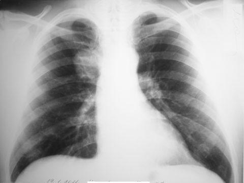 Образование может быть выявлено на рентгенограмме.