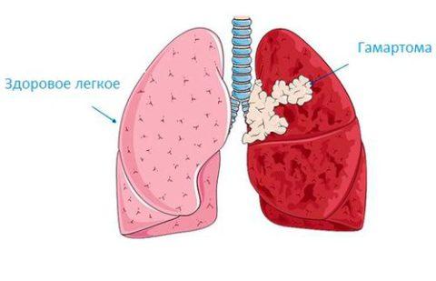 Опасна ли гамартома?