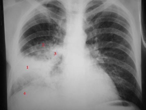 Признаки пневмонии при ВИЧ на рентгенограмме