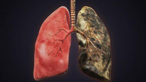 Рак ежегодно отнимает жизни тысяч людей.
