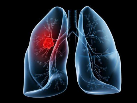 Первичная опухоль – причина плеврита.