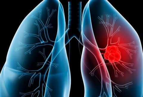 Гимнастика для лёгких - тоже важно