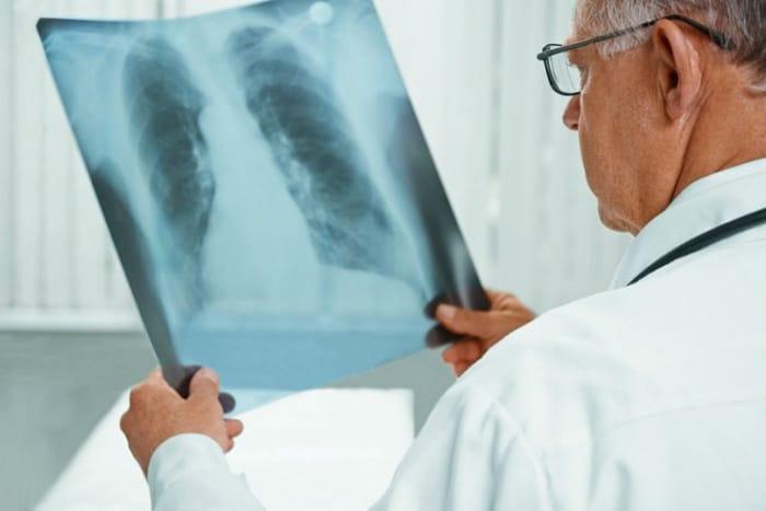 Ежегодная плановая рентгенография гарантирует выявление болезни на ранней стадии.