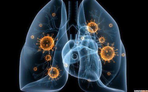 Чаще осложнения возникают при грибковой и вирусной пневмонии.