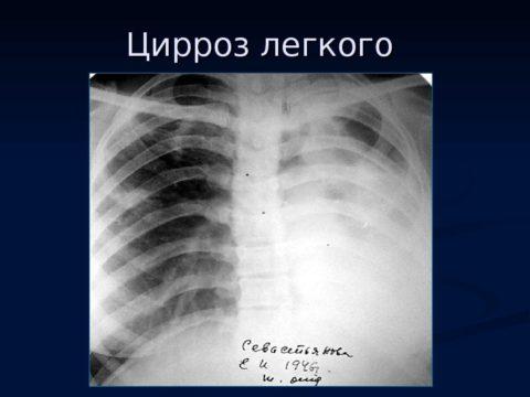 Данные рентгенограммы.