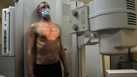 Люди с открытой формой туберкулеза должны проходить обязательное лечение.