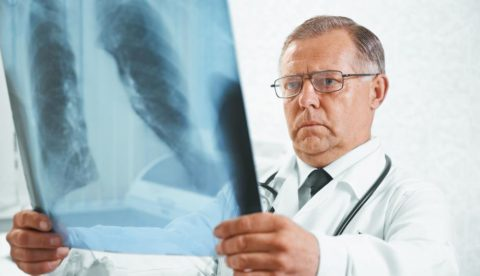 После контакта с больным открытой формой туберкулеза состояние собственного здоровья нужно контролировать.
