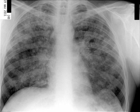 Рентгенография как методы диагностики.
