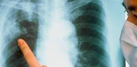 Рентгенограмма помогает выявить туберкулез на ранней стадии.