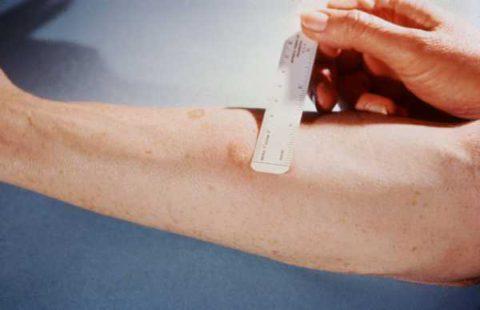 Точности пробы Манту для определения диагноза недостаточно.