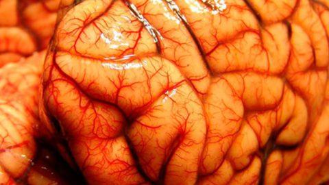 Возбудитель пневмонии может поразить кору головного мозга.