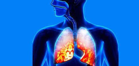 Как развивается воспаление легких.