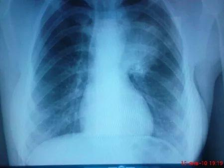 Пневмония на рентгене.