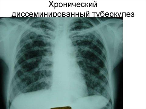 Диссеминация туберкулезного процесса.