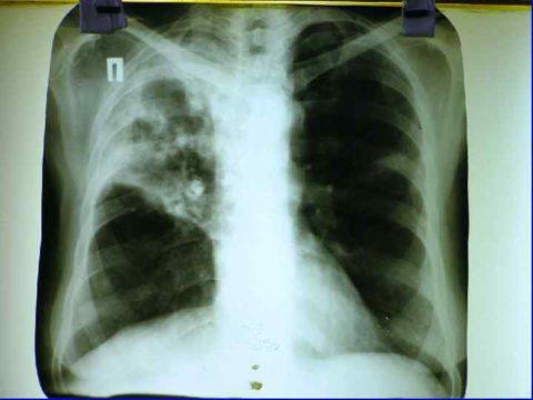 Рентгенологическая методика, как оптимальный метод обследования.