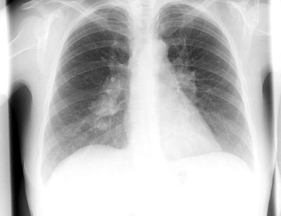 Состояние пациента может изменяться в течении суток, ночью проявляется потливость, усиливается кашель.
