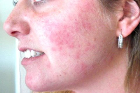 Аллергия на коже от ингаляций Пульмикортом – одно из побочных явлений препарата.
