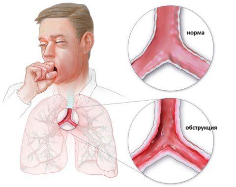 Хроническая обструкция дыхательной системы