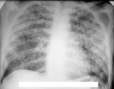 Легкие с пневмонией