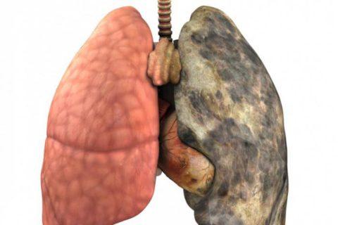 Необратимые процессы вследствие туберкулезных изменений в легком.