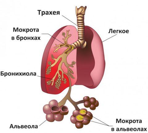 При очаговых воспалениях легких в начале кашель сухой, обильно мокрота выделяется после начала лечения