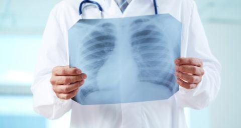 Рентген – наиболее информативный диагностический метод при пневмонии