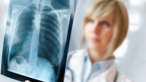 Рентген – самый верный способ диагностики