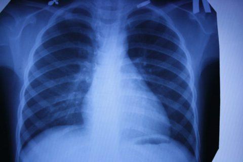 Рентген легких.