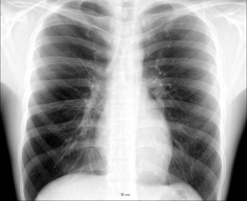 Рентген легких при туберкулезе
