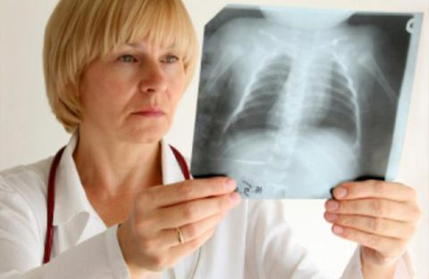 Врач рассматривает легкие на рентгенологическом снимке грудной клетки