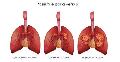 Этапы развития двусторонней карциномы легких