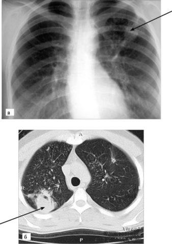 Фиброзные изменения в легких могут быть последствиями пневмонии