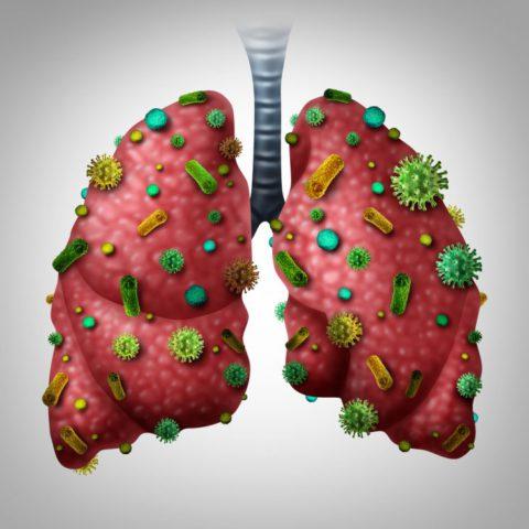 Хроническая пневмония отличается от острой тем, что в легких постоянно присутствуют инфекционные очаги