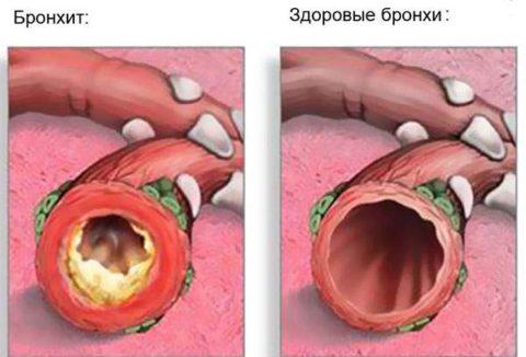 Пример того как выглядят бронхи при развитии бронхита
