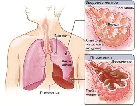 Здоровые и больные альвеолы