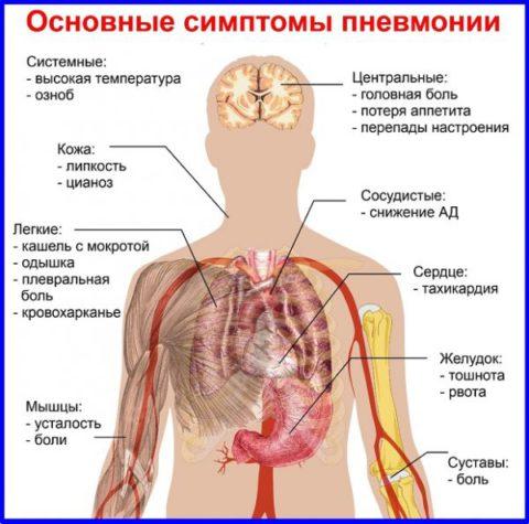 Характерная симптоматика при воспалении легких
